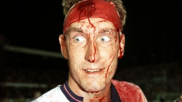 Terry Butcher ensangrentado 2