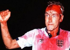 Terry Butcher ensangrentado